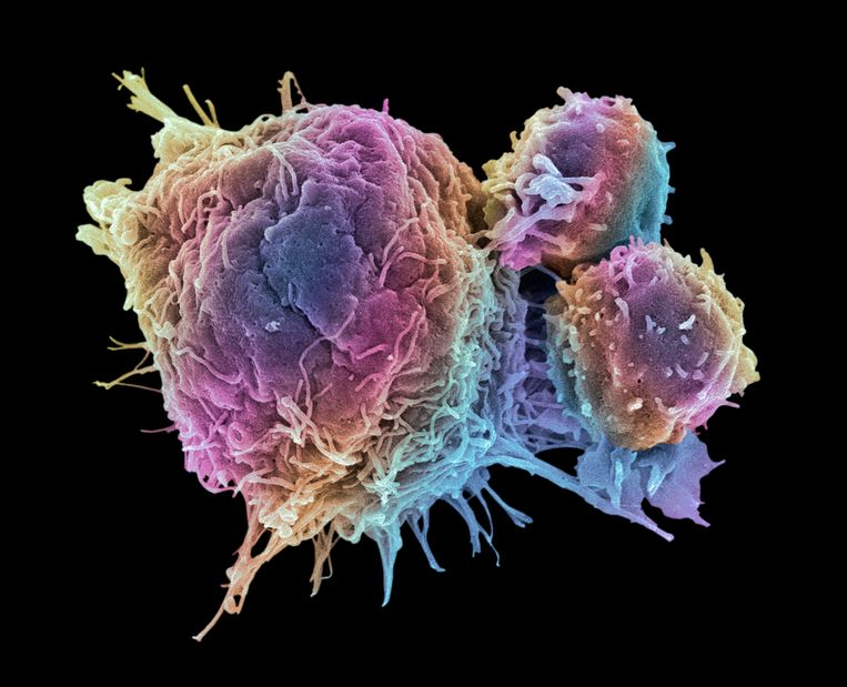 Opname van een kankercel door een rasterelektronenmicroscoop.  Beeld Getty Images/Science Photo Libra