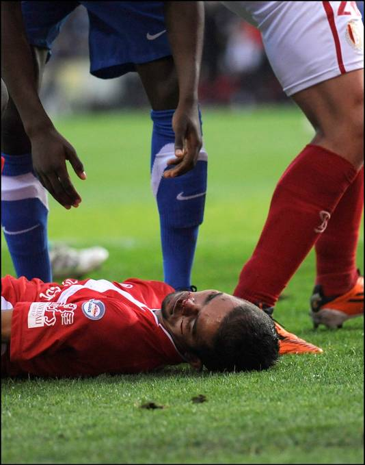 L'image atroce que personne n'oubliera de ce dernier match dans les playoffs 1: le visage en sang de Mehdi Carcela, inanimé.