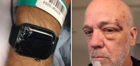Slim horloge redt Bob's leven na flinke smak