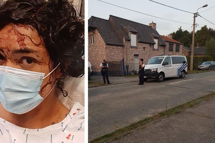 Nelly Ruiz werd aangevallen door twee pitbulls toen ze een avondwandeling maakte en de dieren plots over de omheining sprongen.