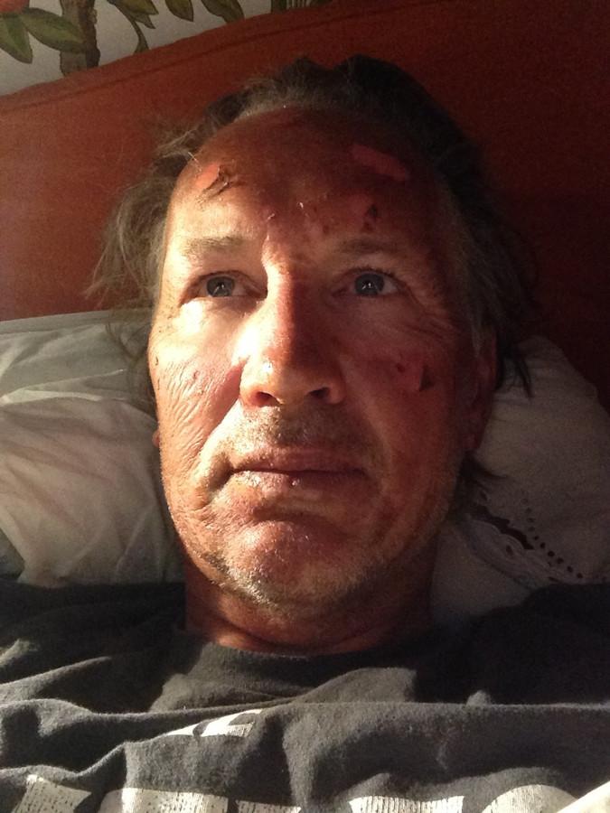 Jaap Scholten liep brandwonden op door de benzine-explosie
