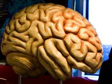 ADHD'ers hebben iets kleinere hersenen
