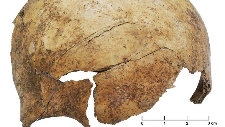 Een ingeslagen schedel van een 8-jarig kind, gevonden in het massagraf nabij Frankfurt. Beeld Christian Meyer