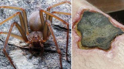 Spin ontdekt waarvan giftige beet menselijk vlees doet afsterven