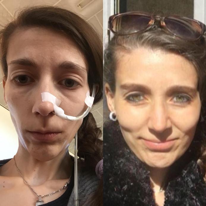 Een foto van Steffie die strijdt tegen anorexia. Rechts een foto in betere tijden, links een actuele foto.
