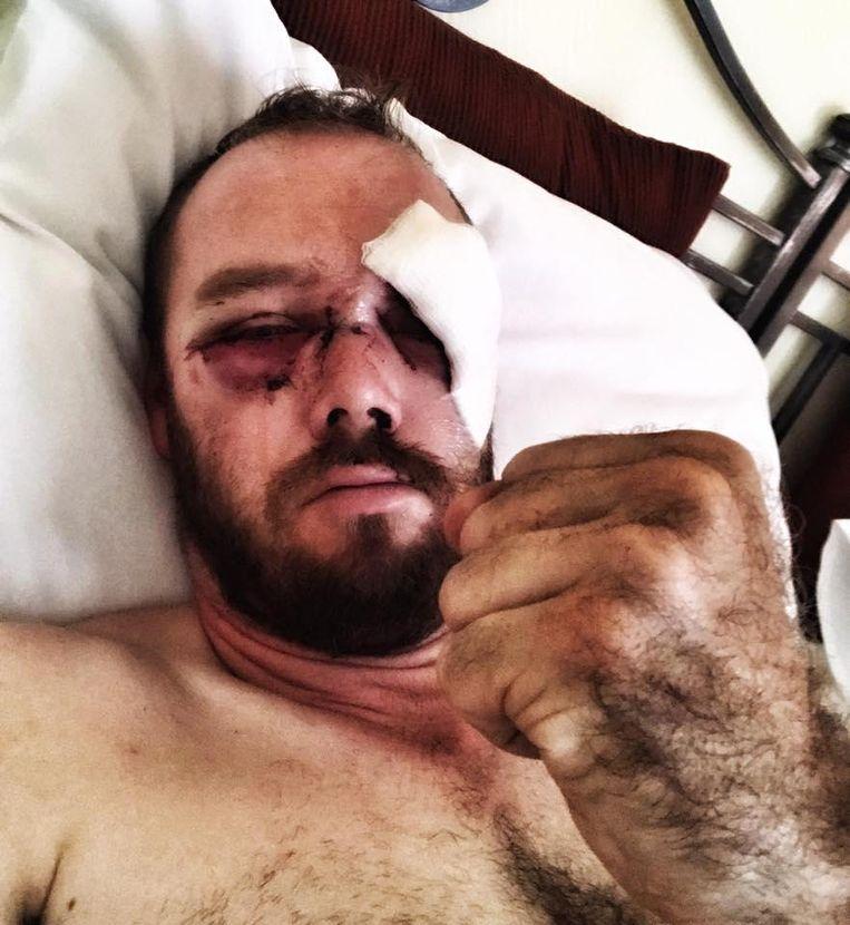 Anthony Caere, hier na de crash. Hij had onder meer een gescheurd ooglid en vreesde blind te worden.