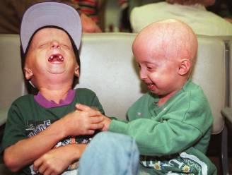 Wetenschappers boeken grote vooruitgang bij behandeling progeria bij muizen