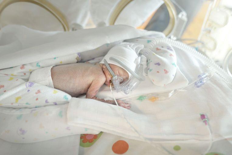 Behandel Niet Ieder Extreem Vroeggeboren Kind Trouw