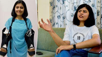 Studente (21) krijgt 'grote, harige donorarmen' na ongeval in India, maar ze blijken langzaam te veranderen