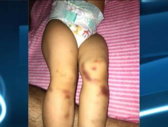 Ouders dienen klacht in: dochtertje vol blauwe plekken na verblijf in crèche