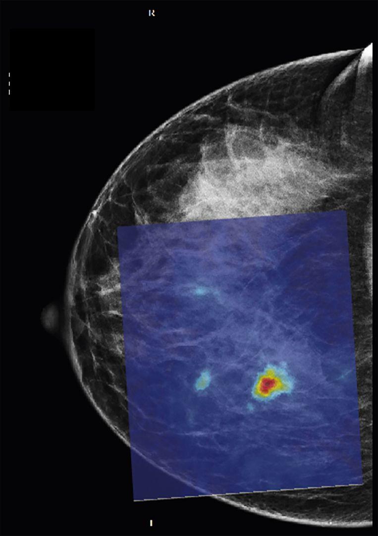 Een borst met dicht klierweefsel, hier is de tumor duidelijk te zien. Beeld