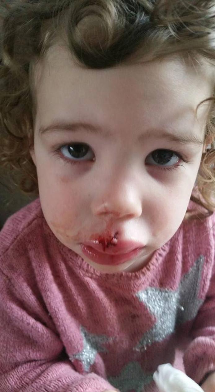 Felicia (2) werd in haar gezicht gebeten door een hond.