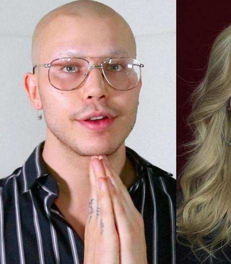 Transformatieartiest laat gezicht verbouwen na kritiek op eigen uiterlijk