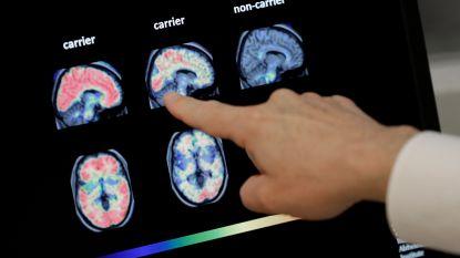 """""""Middel tegen Alzheimer binnen half jaar op de markt"""""""