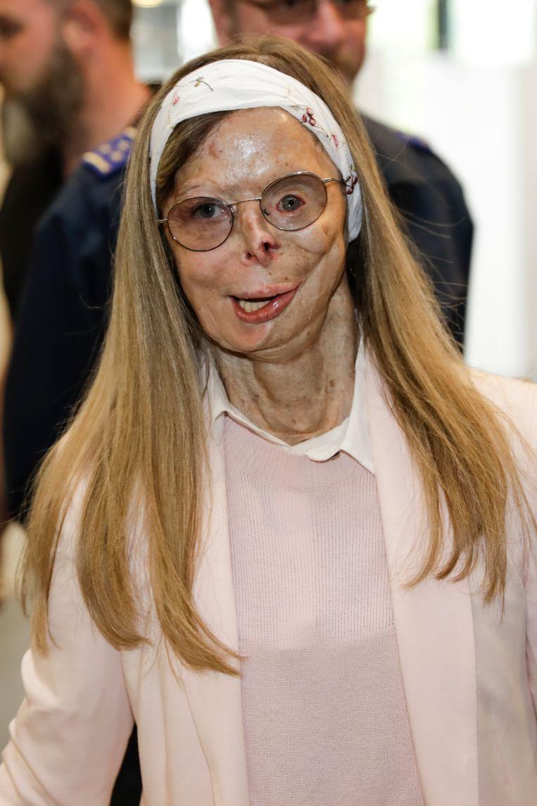 Patricia Lefranc, de vrouw die in 2009 bijtend zuur over zich heen gegooid kreeg door Richard Remes. Voor die misdaad kreeg de man al dertig jaar cel toegewezen.