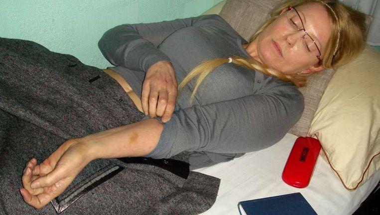 Timosjenko laat haar blauwe plekken zien. Beeld afp
