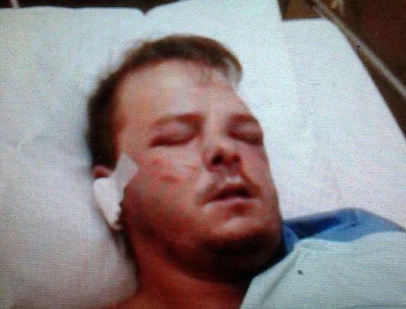 Slachtoffer Wesley Vandenhove belandde door de aanval in het ziekenhuis.