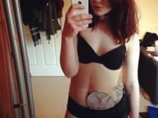 Selfies, seks en bikini's: niets stopt 19-jarige met stoma