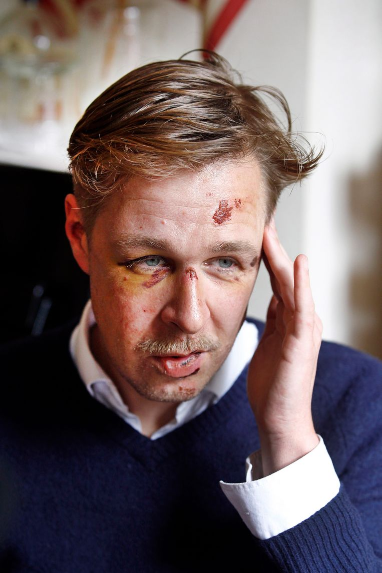 Het gehavende gezicht van Wilfred de Bruijn, enkele dagen na de mishandeling in Parijs. Beeld AP