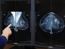 'Vrouwen onnodig vaak op controle na borstkanker'