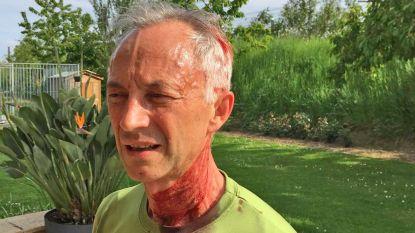 """Slachtoffer van aanval buizerd getuigt: """"Het lijkt alsof iemand een stok op je hoofd klopt"""""""
