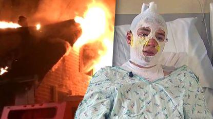 """Derrick rent door vlammenzee om drie kinderen te redden en raakt zwaar verbrand: """"Ik kon hen niet laten sterven"""""""