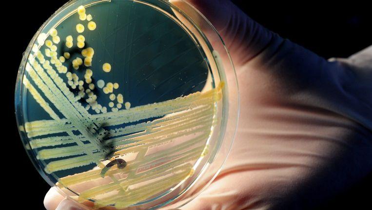 Een petrischaaltje met bacterie-kolonies. Beeld EPA