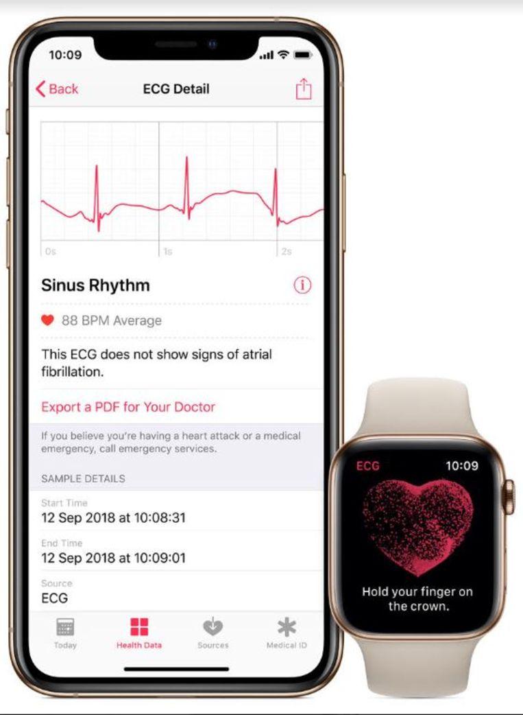 De ECG-functie van de Apple Watch Beeld Apple