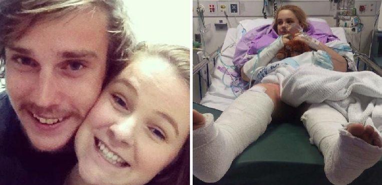 Links: Jade en Douglas in betere tijden. Rechts: Jade na het auto-ongeval. Ze bleek maar liefst zeventien botten gebroken te hebben.