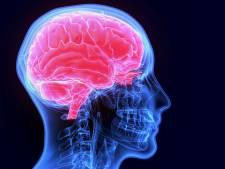 Experts: geheugenpillen werken niet en zijn zonde van het geld
