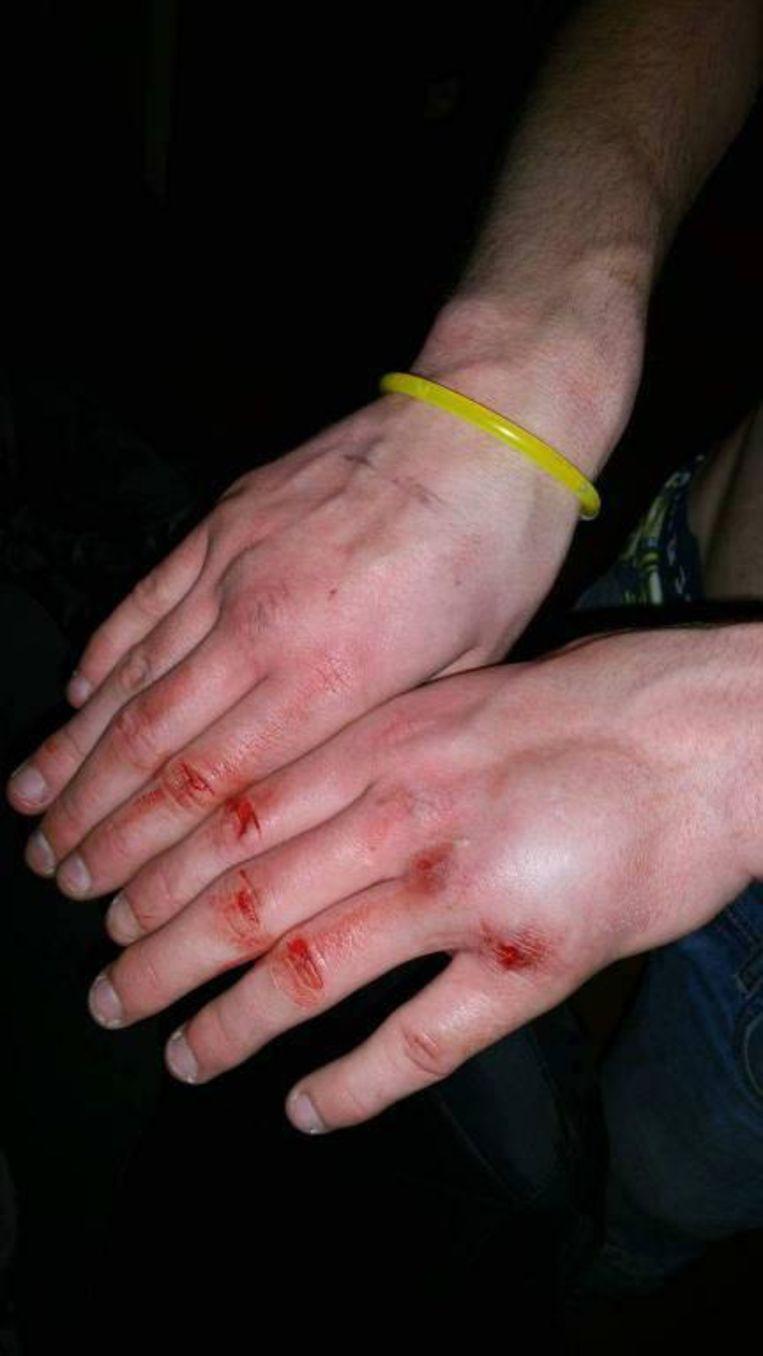 Het slachtoffer hield er ook een gebroken hand aan over