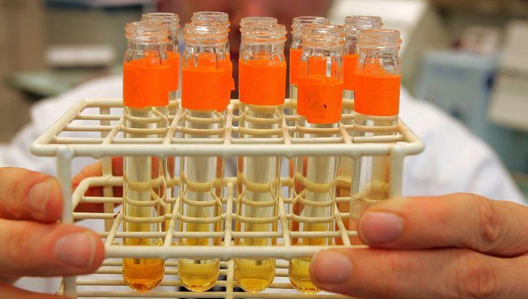 Een man toont buisjes met urinemonsters die op het punt staan getest te worden op sporen van doping. Beeld epa