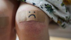 Vraag aan dermatoloog: waarom heb ik meer last van blauwe plekken dan anderen?
