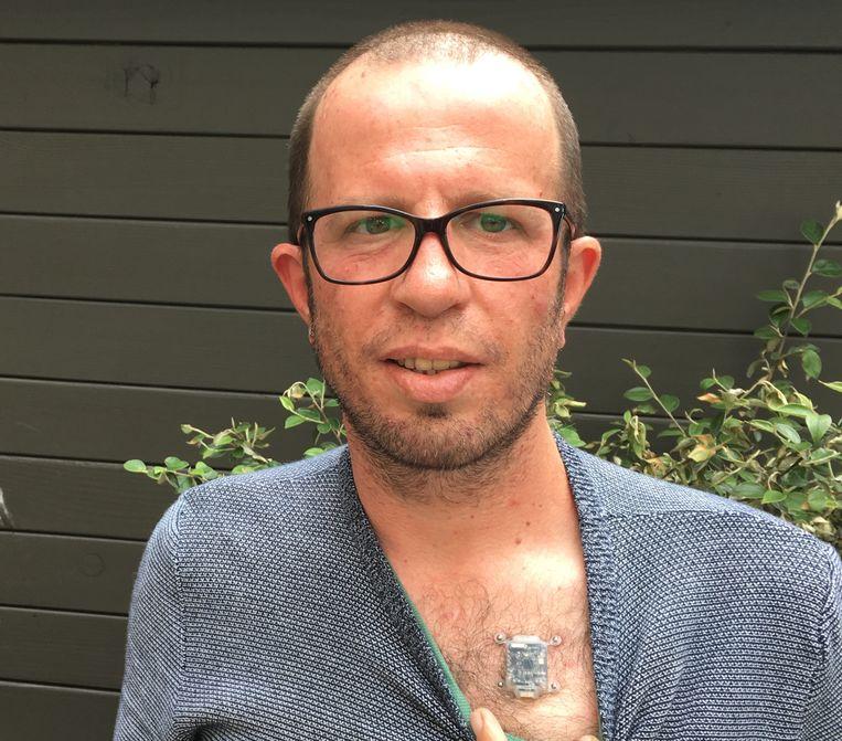 Babitz heeftdit kompas twee jaar gedragen, maar omdat hij nu de nieuwe versie af en toe moet testen, heeft hij het anderhalve maand geleden van zijn borstkas gehaald. En... hij mist hem.