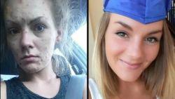 """""""Ik stal van mijn familie om drugs te kunnen kopen"""": Jamee was verslaafd aan heroïne, nu pakt ze uit met spectaculaire metamorfose"""
