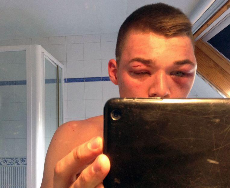 De toen 16-jarige V. toont zijn verwondingen.