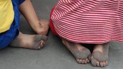 Fout van aannemer: kindjes kunnen niet meer buiten spelen zonder speciale pantoffels