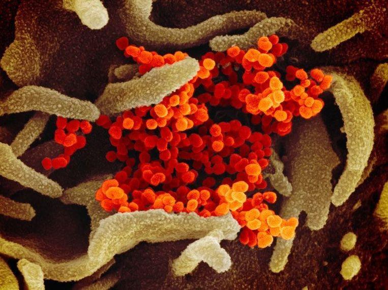 Een foto van het coronavirus.