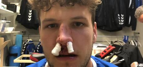 Altena-speler McDermott uit de roulatie door gebroken neus