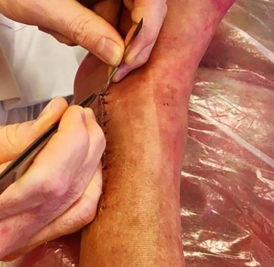 De hechtingen worden weggehaald uit Marga's been.