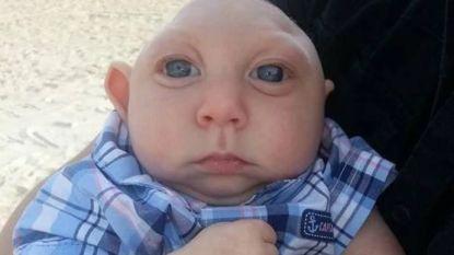 Jaxon (5) die bij geboorte deel van schedel miste, is gestorven in armen van zijn papa