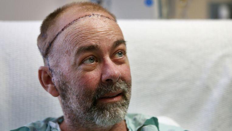Jim Boysen kan verder door het leven met een nieuwe schedel.