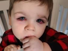 Baylor a failli perdre la vue à cause de ses jouets de bain, sa maman alerte