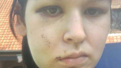 """19-jarige krijgt klappen omdat ze fout geparkeerd stond: """"Zo'n geweld is nergens voor nodig"""""""