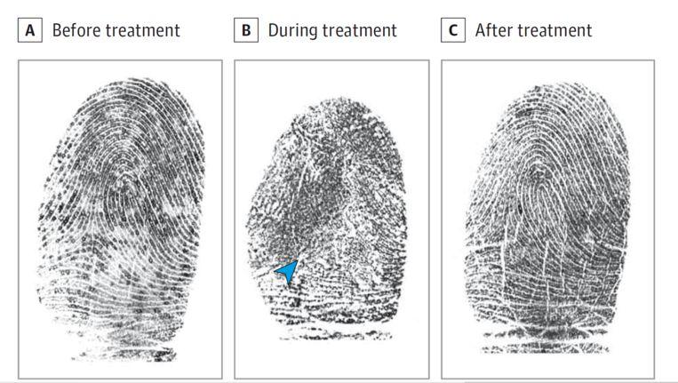 De vingerafdrukken voor, tijdens en na de behandeling. Beeld JAMA Oncology