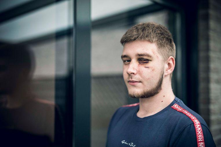 Ensor (20) liep verwondingen op tijdens een carnavalsfeest.