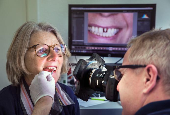 Arme mensen met gebitsproblemen.Esther langendam bij de tandtechnieker voor een kleurenproef voor haar ontbrekende tand.Ze durfde alleen nog maar te lachen met haar hand voor haar mond(Den Haag 25-02-19) Foto:Frank Jansen