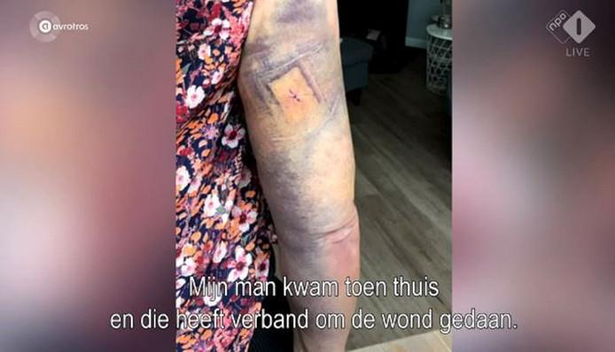 De arm van de 52-jarige hardloopster na de aanval.