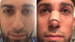 """Eerste interview 'Temptation Island'-verleider Fabrizio na zijn neusverkleining: """"Dit is echt wat ik wou!"""""""