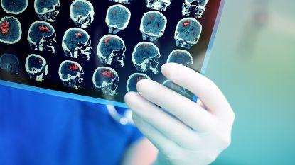 Onderzoekers ontdekken verband tussen psychopathie en hersenafwijking